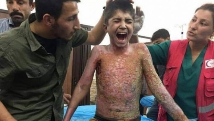 ABD kongre üyesi: Türkiye'nin Rojava'da Beyaz fosfor kullanımı araştırılsın